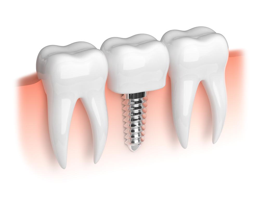 Implantat ustna medicina